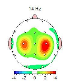 2-D QEEG Brain Map for Migraine