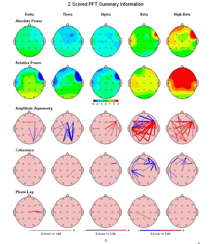 Brainmap 1