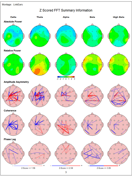 Brain map 2 Epilepsy Case Study Using Neurofeedback