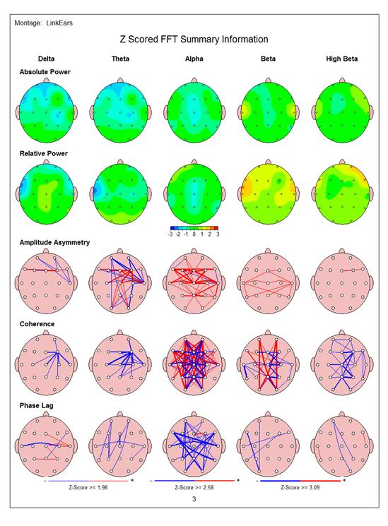 Brainmap 3