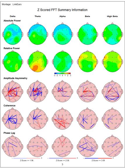 Brain map 2 Epilepsy Case Study Using Neurofeedback
