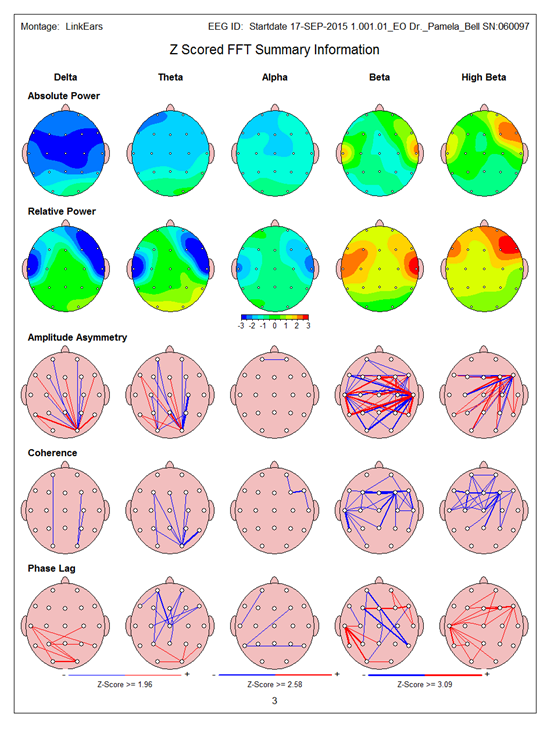 Brainmap 2